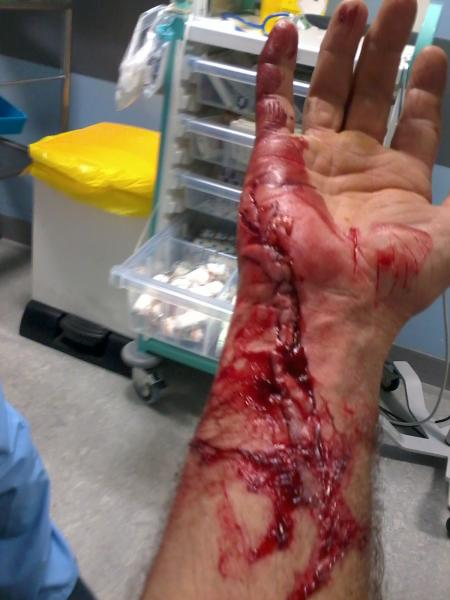 Warning GRAPHIC PICTURES chainsaw injury! - General chat